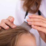 طريقة إزالة القمل من شعر الأطفال